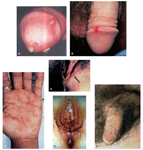 Placenta previa: Definicin Placenta previa - Doctissimo